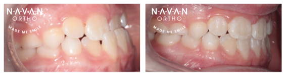Crossbite | Braces | Navan Orthodontics | 6 month braces | Kids Braces
