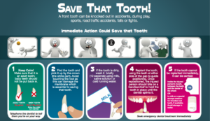 Save that tooth | HSE | dental trauma | front teeth broken |